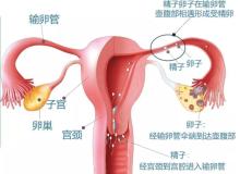 解决大问题的小手术——实时动态子宫输卵管碘油造影术