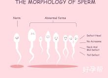 菏泽人工授精医院成功率数据是真实的吗?女性是否要进行手术