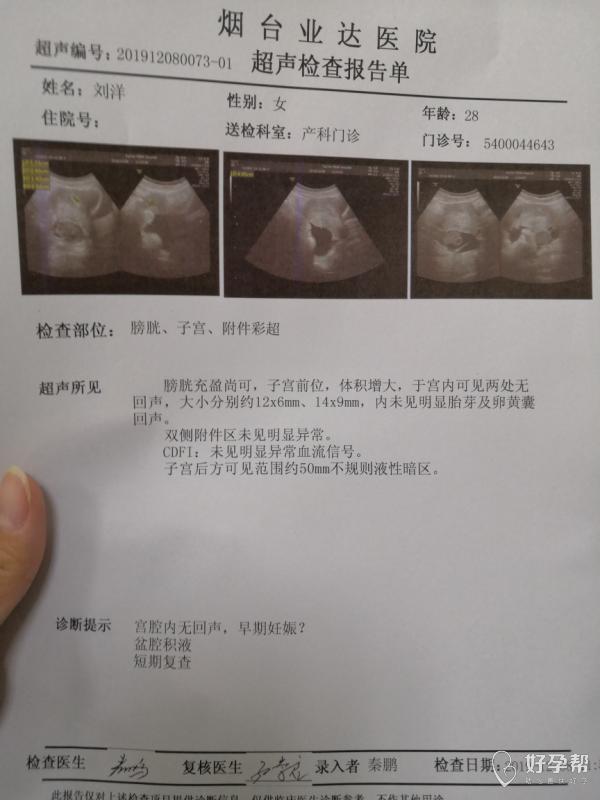 孕五周,盆腔积液50mm