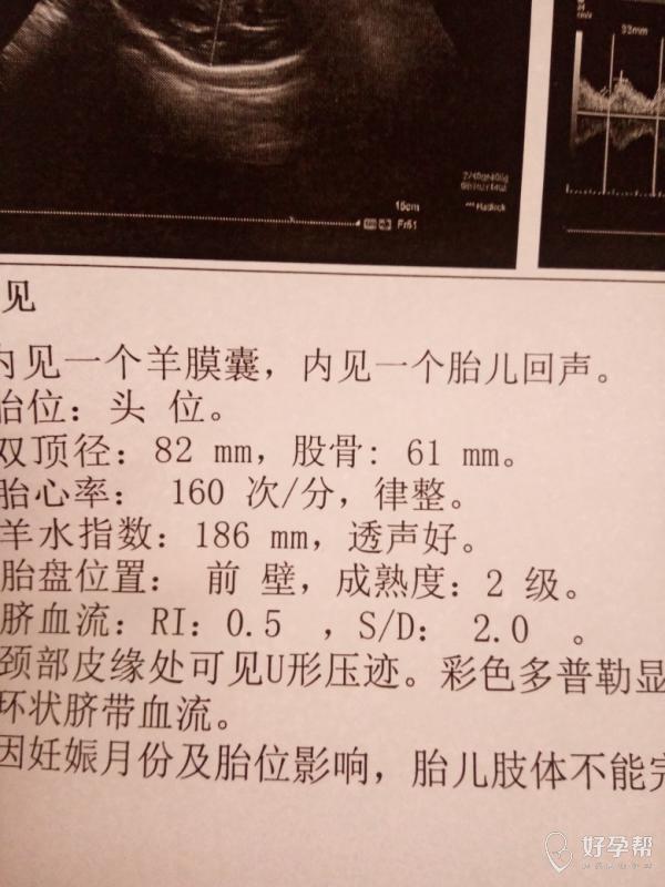 怀孕32周羊水指数多少正常_怀孕30周羊水指数_怀孕24周羊水指数