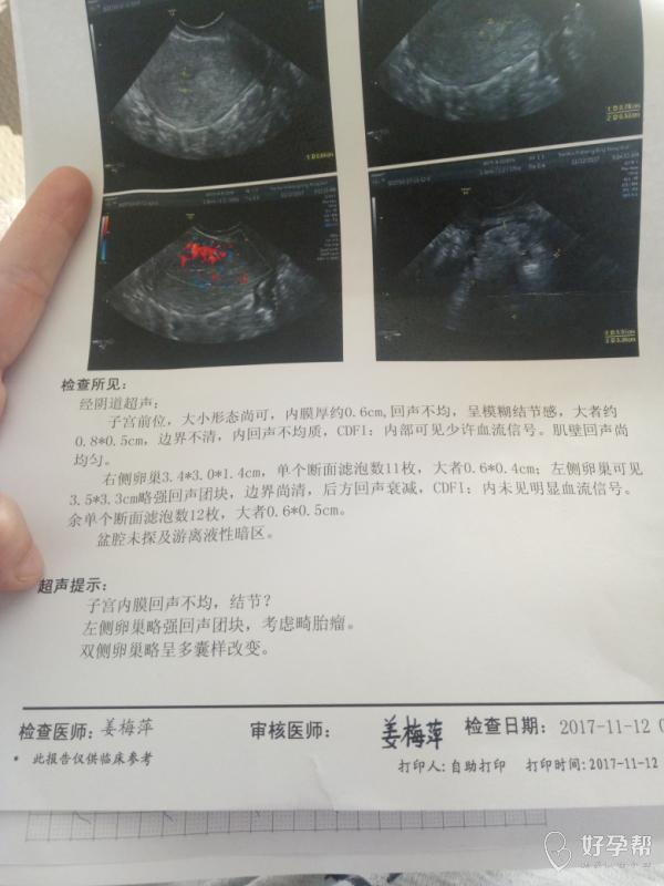 下周要去做宫腔镜检查术,求助医生解答