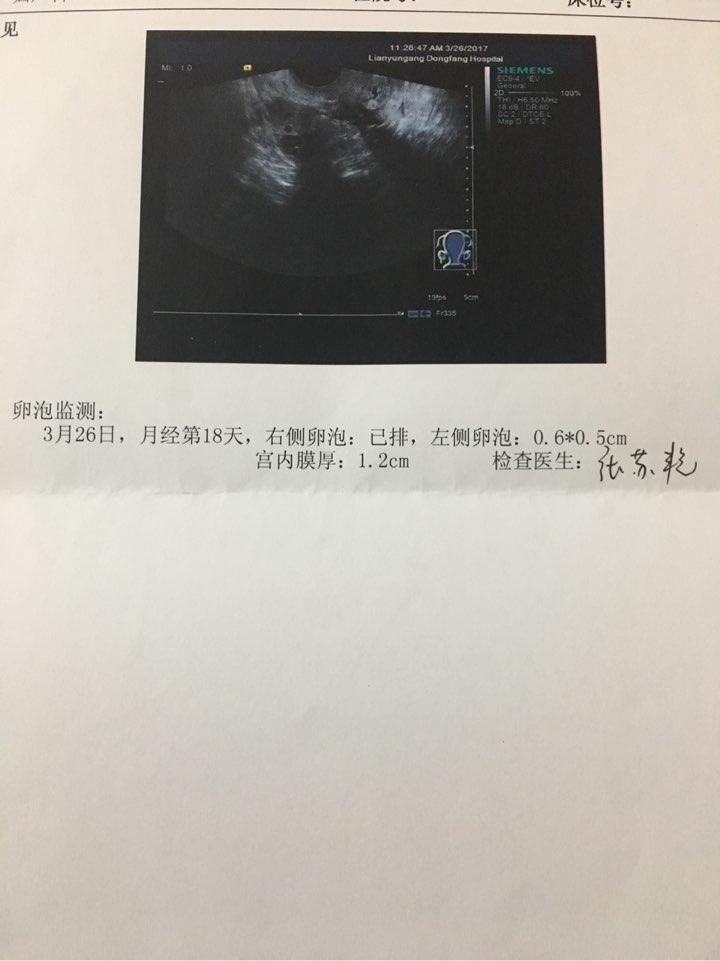 有成熟卵泡排出,会是多囊么?-多囊卵巢综合症-卵巢发育-难孕治疗论坛-好孕帮