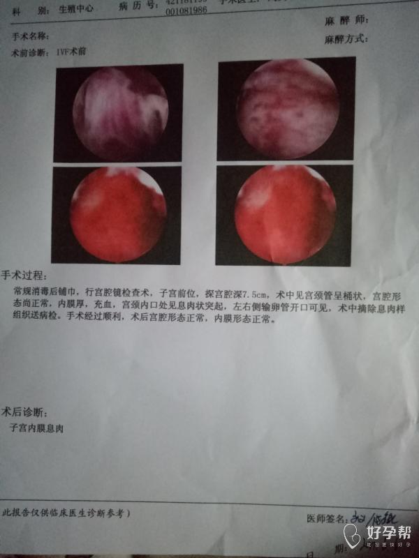 【试管经历】我的宫腔镜检查过程