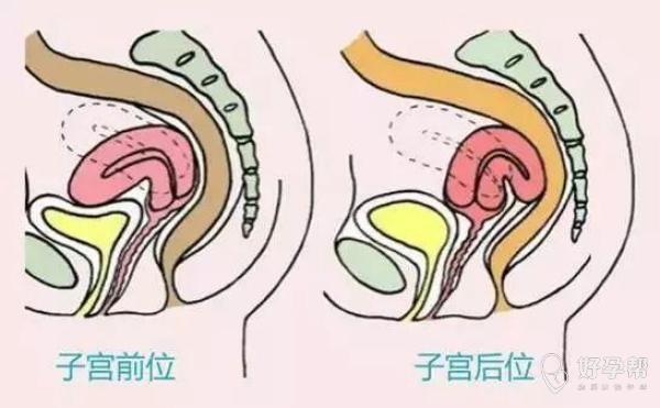 子宫后位真的会对怀孕产生影响么?那应该注意哪些方面呢?