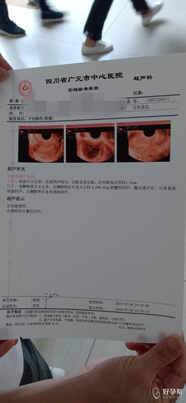 帮忙看下,是不是多囊卵巢。泌乳素比较高做