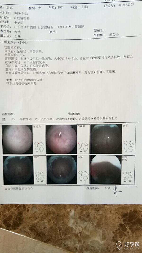 我7月23号做的宫腔镜,到现在还有点不干