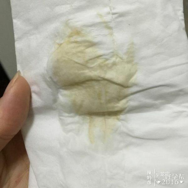 医生,我自从怀孕后白带有时候就像这个一样,怀孕初期检查过说我有阴道