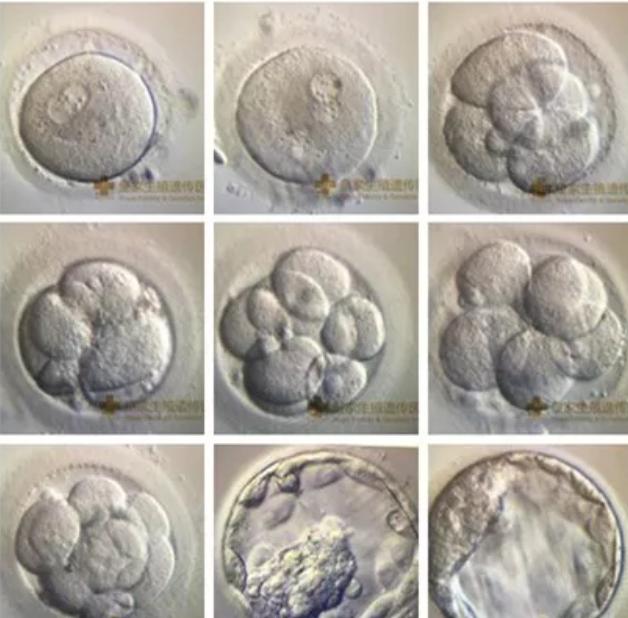 3分钟教你学会:如何辨别IVF实验室的实力高低