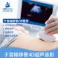 美中宜和妇儿科医院无痛下子宫输卵管4D超声造影检查VIP服务