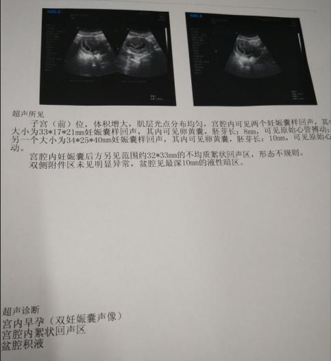 两次冻胚移植失败,赴泰国做三代试管成功怀双胎