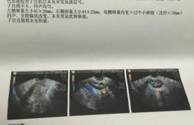 多囊久备不孕,试管生化妊娠,想要当妈妈好难!