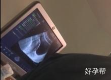 二胎求子赴泰,最终完美好孕,含各阶段小视频描述