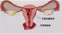 子宫肌瘤会影响妊娠吗?