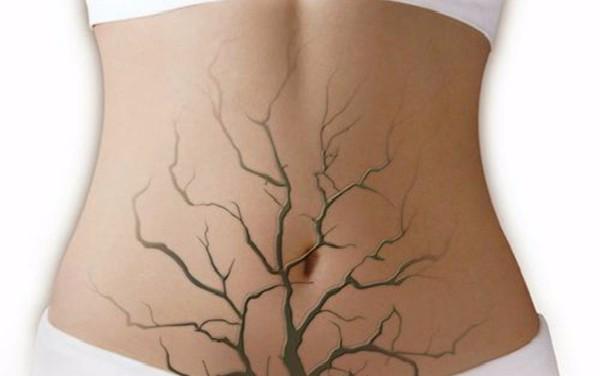 子宫内膜异位症手术后怀孕几率