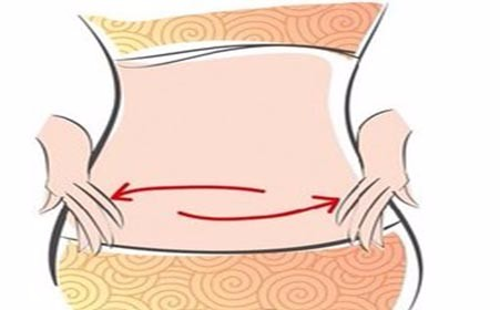 子宫内膜异位症手术后注意事项