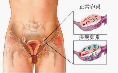 多囊卵巢综合症手术费