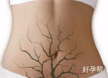 促排卵治疗会不会引起卵巢早衰