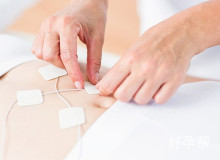促排期间电刺激套餐-济南门诊