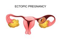 运城哪个医院可以做人工受孕?人工受孕是什么意思?