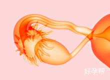 输卵管造影检查-济南中医药大学附二