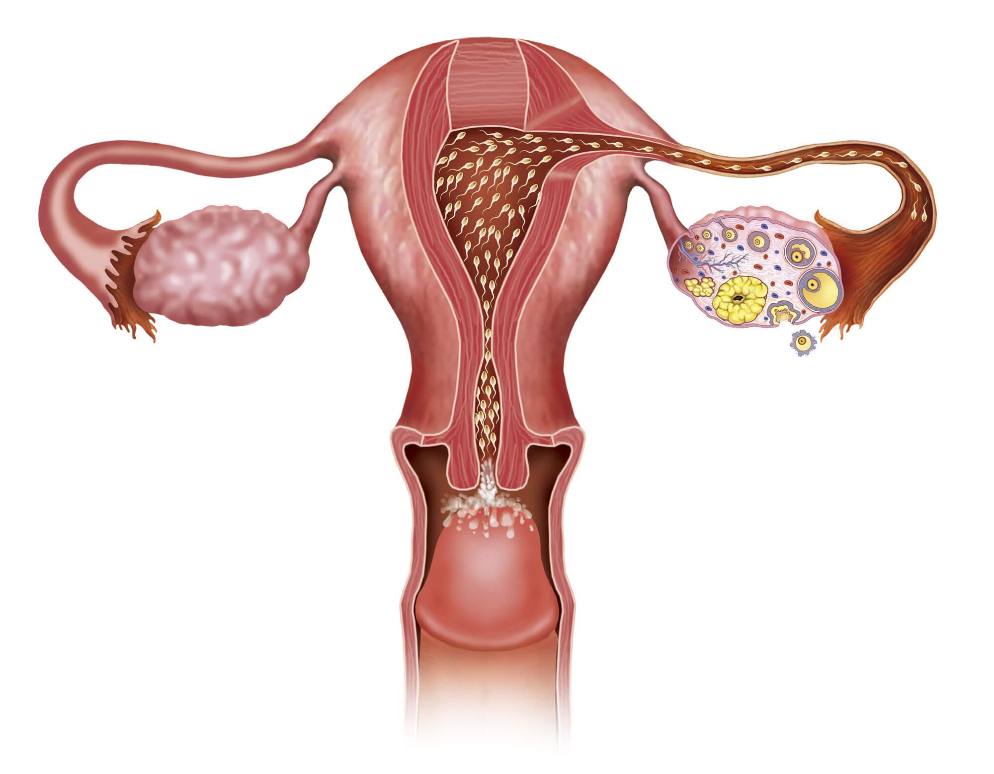 别纠结子宫肌瘤的治疗方法,先看看你的肌瘤需不需要治疗!