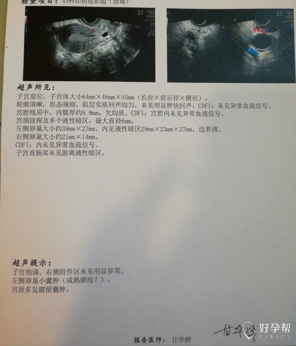 年龄34岁2019年7月做了宫腔镜息肉术术后
