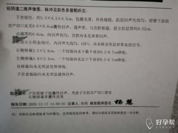 医生子宫瘢痕憩室肌层022能正常怀孕吗
