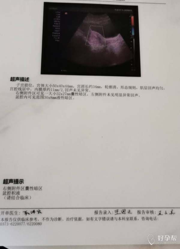 8月2号来的月经8月12号做的输卵管造影结果