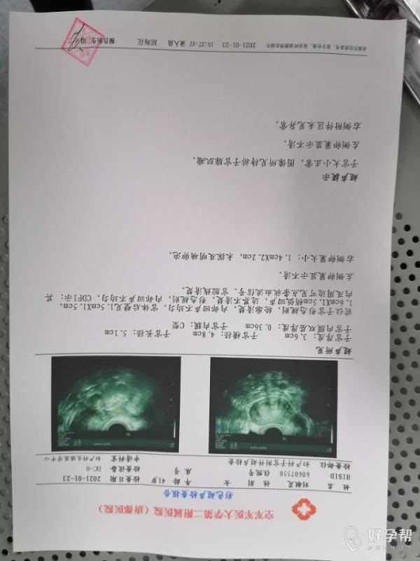 48岁一侧输卵管摘除左侧