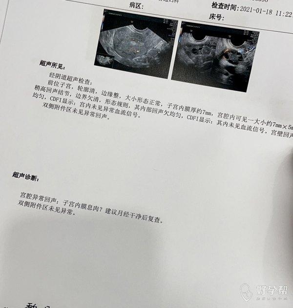备孕中请问这个需要做宫腔镜手术治疗吗平时月经