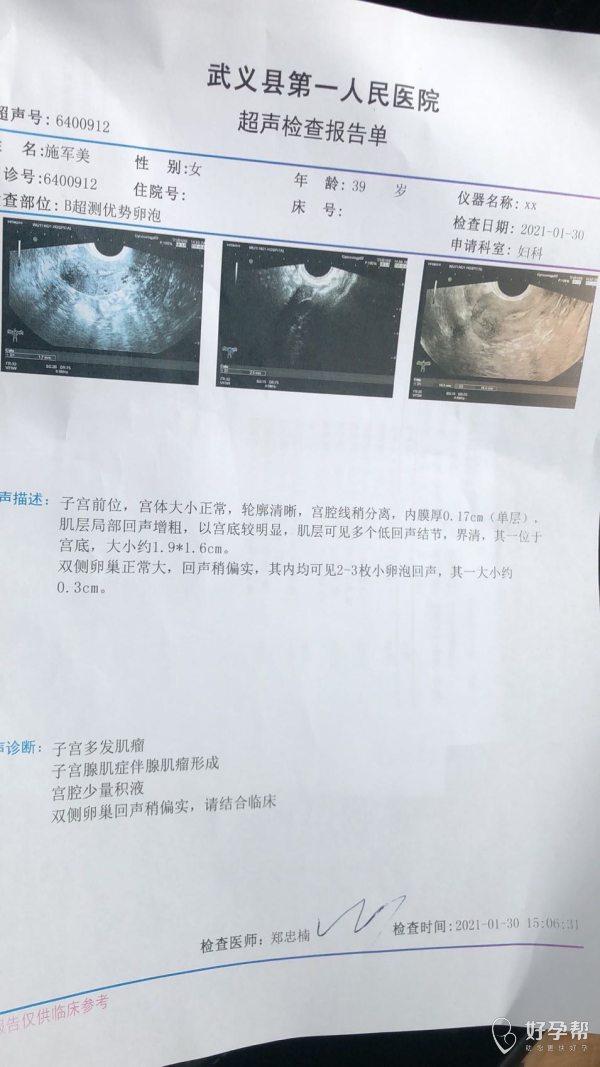 2007年宫外孕引起的输卵管堵塞2018年疏
