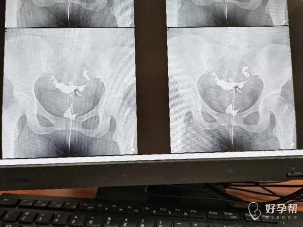医生您好请问从造影片子上可以看出是输卵管哪个