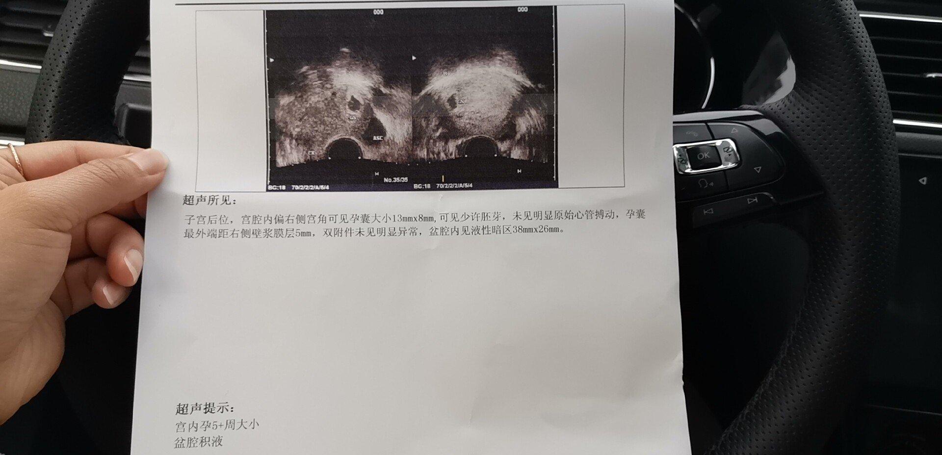 停经40天左右今天做阴超显示孕囊最外端距右侧