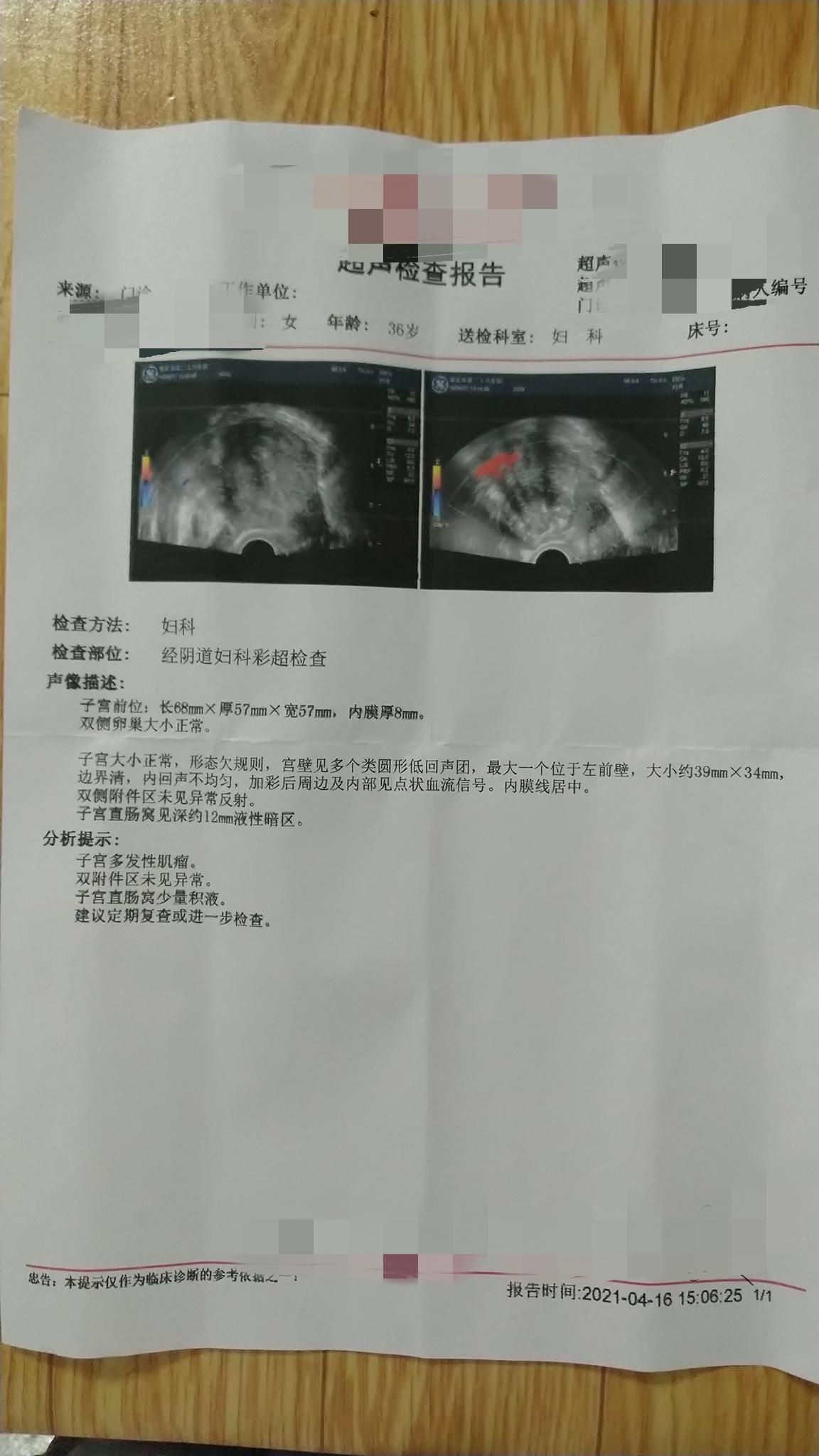 卵巢早衰多发性子宫肌瘤最大一个位于子宫左前壁