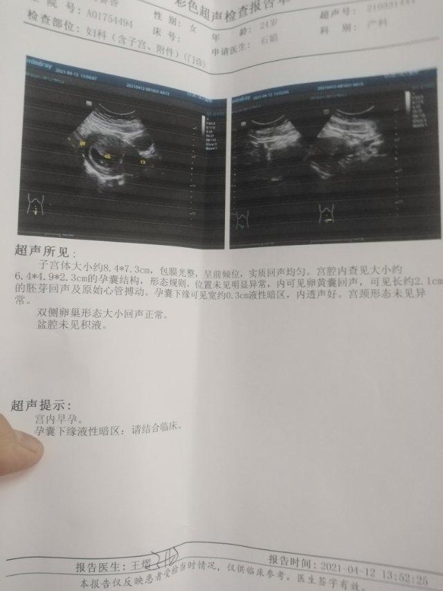 孕9周3今天做b超医生说还没有胎盘我也要怎么