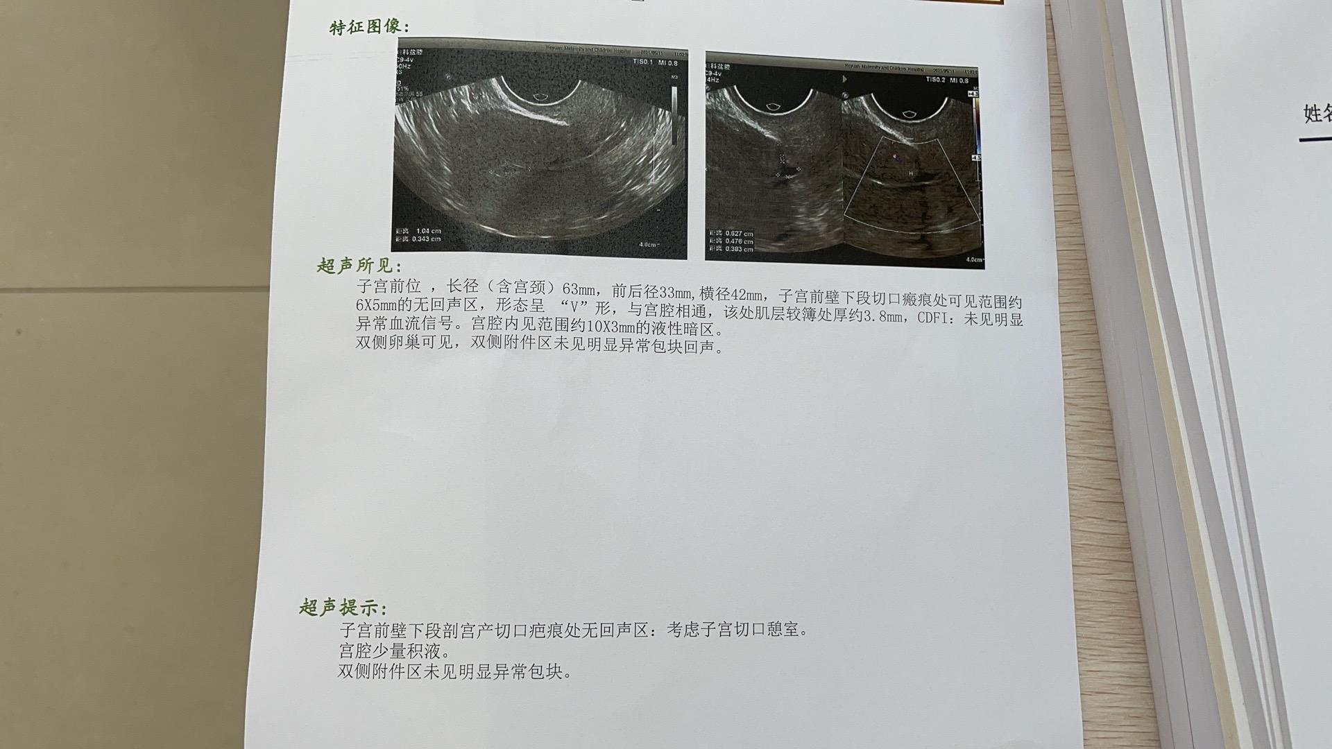 胎停4月4号做的清宫手术吃了一盒优思悦停药已
