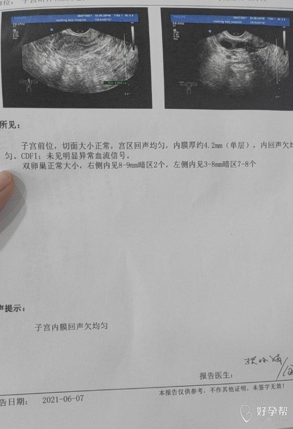 4月21号做完清宫术后内膜回声一直不均匀