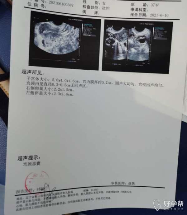 请问医生宫颈纳囊影响怀孕吗有没有不用做手术的
