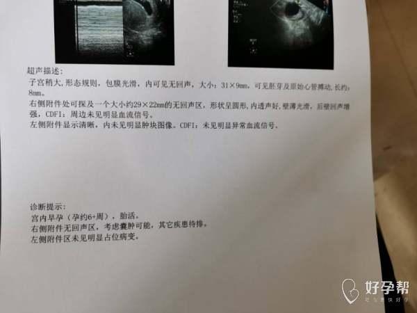 孕6周b超有胎心孕酮低医生开了黄体酮氨基酸胶