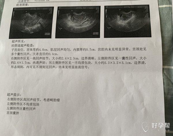 您好多囊卵巢综合征好几年结婚后没治疗也没怀孕