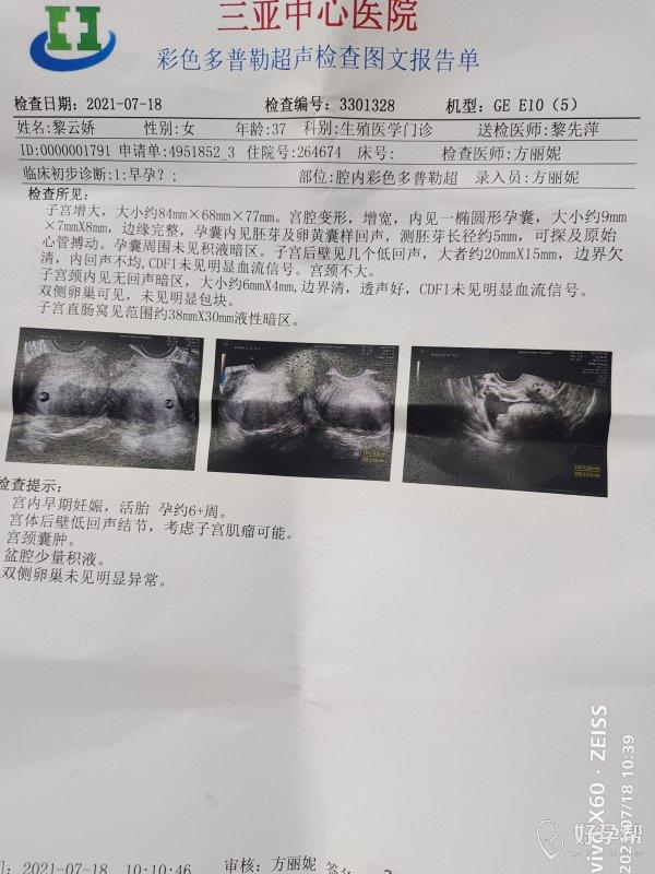 6月21号移植5天囊胚7月4号查血hcg40